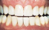 Tucson Cosmetic Dentistry