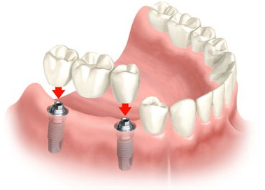 implant bridge 2